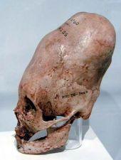 Paracas / Perú - otro antiguo cráneo en forma de cono