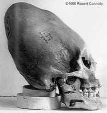 Un cráneo en forma de cono encontrada en Paracas / Perú