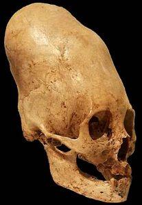 Cráneo en forma de cono de Paracas-Perú