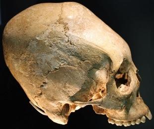 Elongated skulls USA