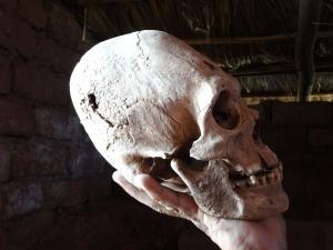 Algunos cráneos alargados, fueron descubiertos por un campesino sobre sus tierras en los alrededores de Puma Punka.  Tenía uno mucho más largo, pero se lo han robado.